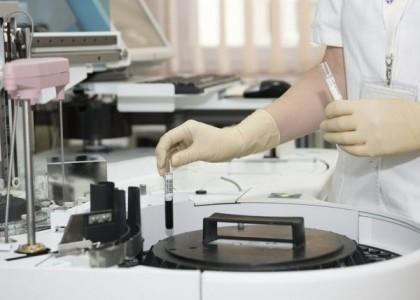 Nature-Studie: Hinweise auf veränderten Stoffwechsel bei CFS-Patienten