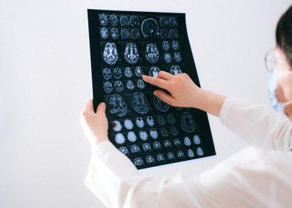 Welttag des Gehirns 2021